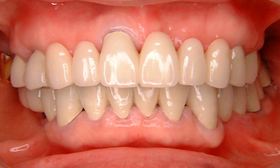 歯周外科手術After 四日市 歯科