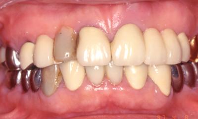 歯周外科手術Before 四日市 インプラント