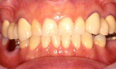 歯周外科手術+矯正+ホワイトニングBefore 四日市  インプラント