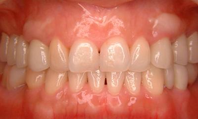 歯周外科手術+矯正+ホワイトニングAfter 四日市 歯科