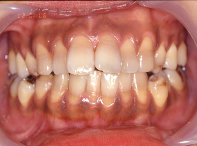 歯周外科手術+矯正Before 四日市 歯科