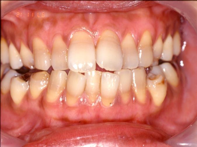 歯周外科手術+矯正After 四日市 歯科