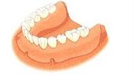 総入れ歯の場合 四日市 インプラント 費用